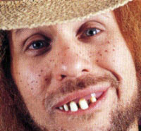 hillbillyteeth.jpg